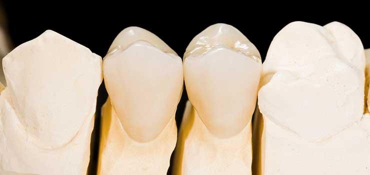 crowns at eagle dental practice Liphook