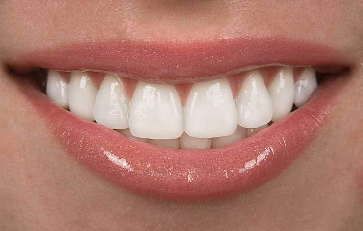 veneers from Eagle Dental Practice Liphook